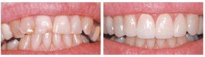Align Crooked Teeth